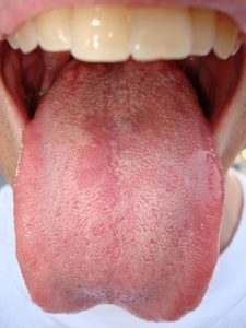how to clear up thrush in mouth
