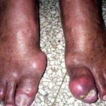 Artritis Gotosa, Síntomas y Tratamiento de la Gota o Ácido Úrico