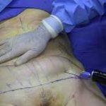 ¿Cómo es una liposucción? (proceso y riesgos)