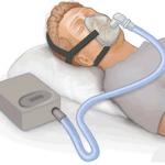 Tratamientos para la apnea del sueño